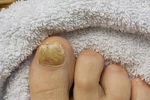 Die stärkesten Tabletten von gribka der Nägel