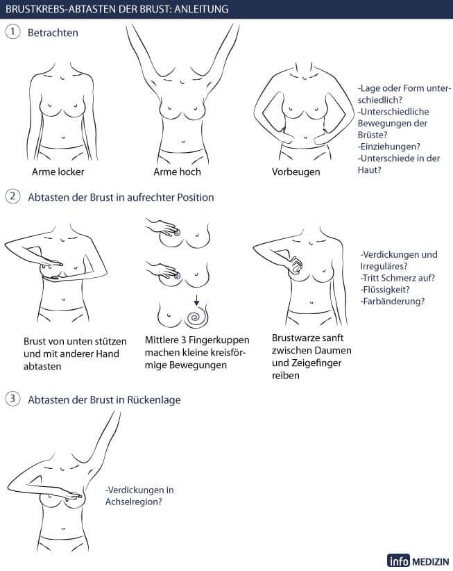 Brustuntersuchung wie