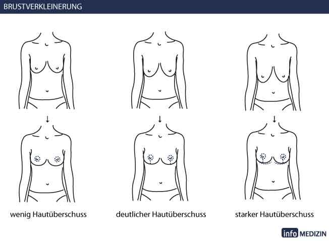 Die am meisten kleinen Brüste der Mädchen