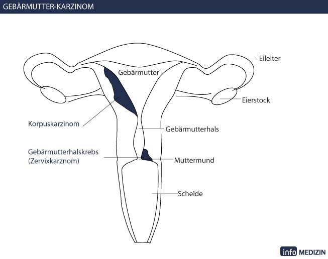 Gebärmutterhalskrebs, Zervixkarzinom - Erkrankungsverlauf
