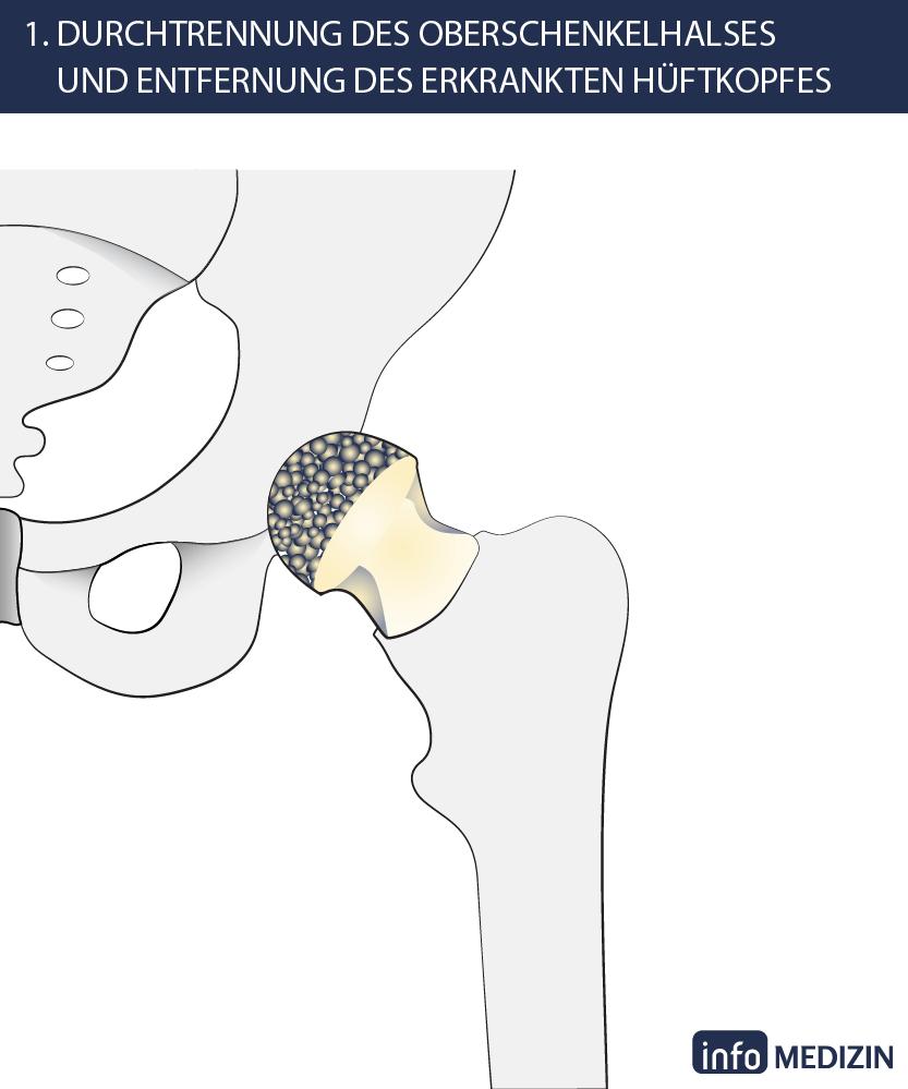 Hüft-OP: So wird ein künstliches Hüftgelenk eingesetzt | info Medizin