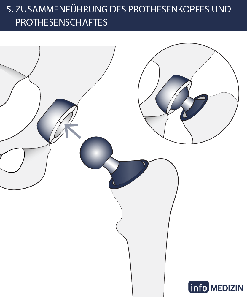 Ungewöhnlich Hüft Und Oberschenkelmuskulatur Zeitgenössisch ...