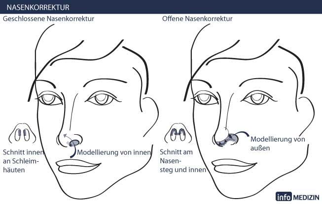 Nasenkorrektur / Nasen OP - Infos & Kosten | info Medizin
