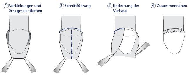 Urologenportal: Die Beschneidung beim Mann
