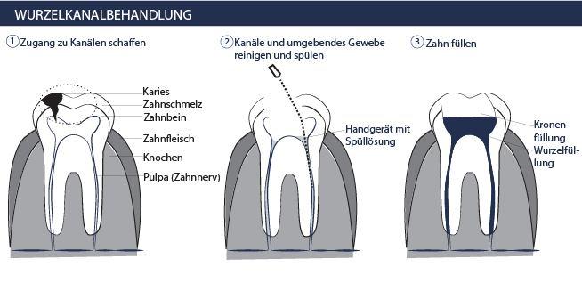 Zahnarzt-Kosten: Wer zahlt die Wurzelbehandlung?