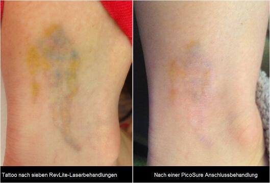 Tattooentfernung Tattoo Lasern Infos Kosten Info Medizin