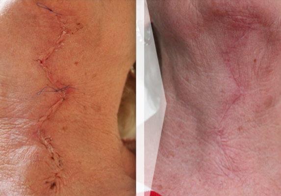 Narben Entfernen Mit Laser Narbenkorrektur Info Medizin